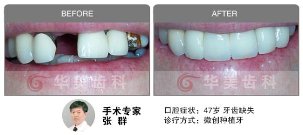 智齿要拔吗_拔智齿脸型前后对比图_智齿脓肿图片