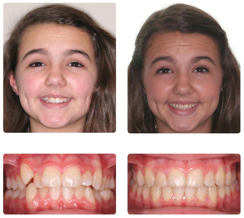 5 Honest Invisalign Before amp After Reviews  All New Teeth